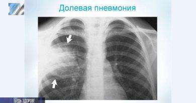 Как специалисты борются с пневмонией