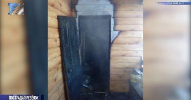 В результате пожара в частном секторе пострадал подросток